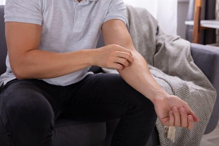 Are men more prone to molloscum?