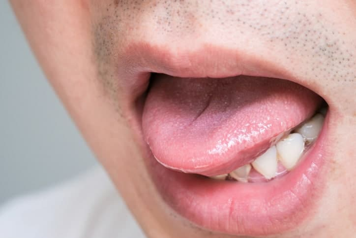 Is syphilis making a comeback in Singapore?