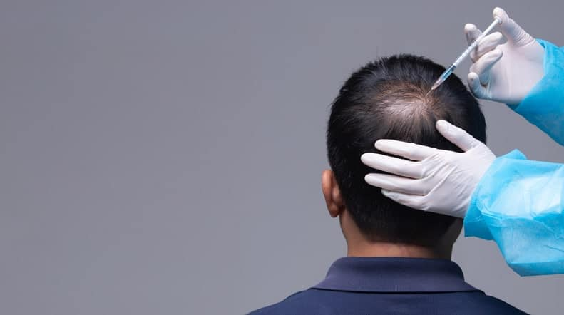 Man getting hair injection