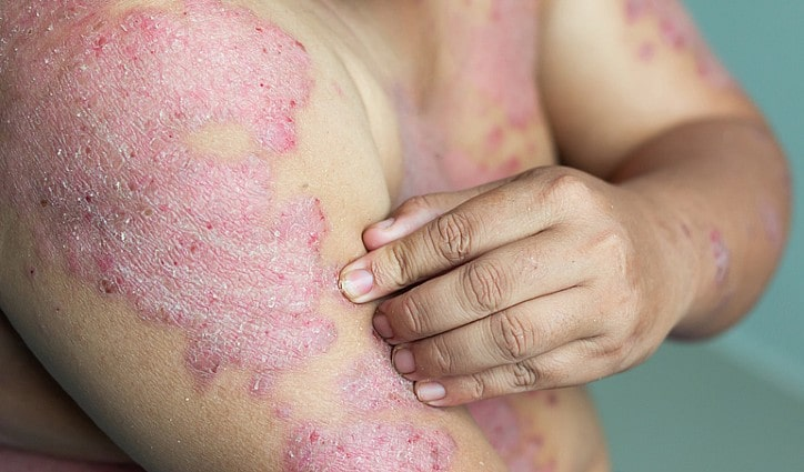 Why do men experience psoriasis differently?