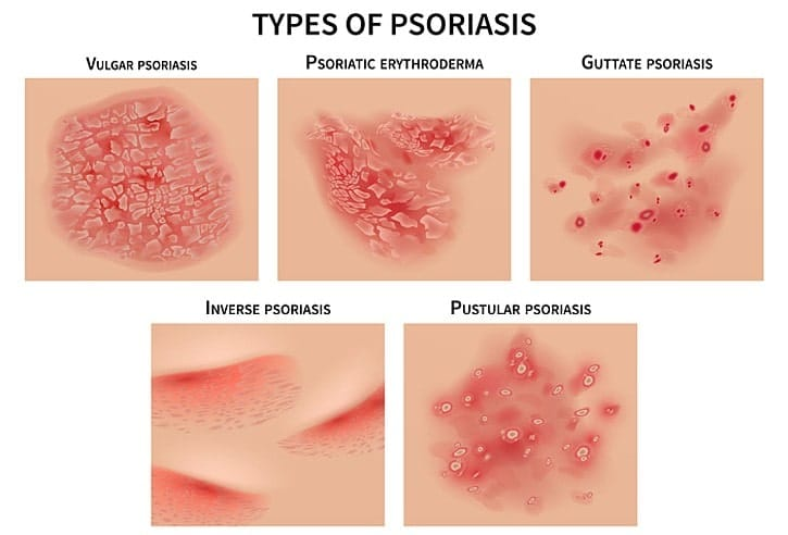 Illustration of different types of psoriasis