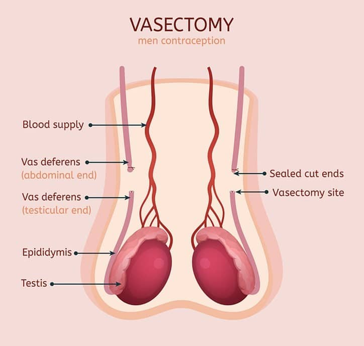 An Illustration of a Vasectomy