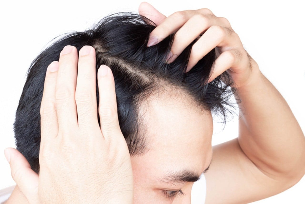 Man suffering from hair loss